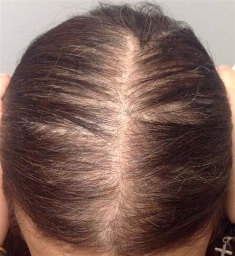 hair growth treatments dy dermatology