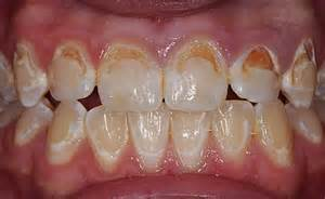 Plaque On Teeth with Cavity