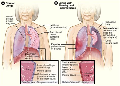 Pneumothorax  Pulmocriticare. Protocol Signs. Class A Signs. Bone Signs. Atypical Pneumonia Signs. Yard Signs Of Stroke. No Phone Zone Signs Of Stroke. Ling Signs. Storage Signs Of Stroke