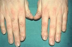 Every Type Of Wart And How To Treat It