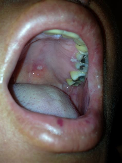 herpes zoster ophthalmicus extending   palate