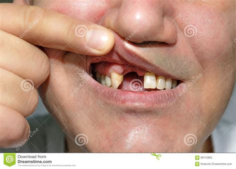 Man Fingers Mouth Naked Photo