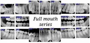 Full Mouth Dental X