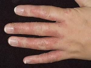 Эффективное средство от грибка на ногтях и ногах