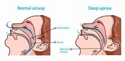 Apnea Sleep Obstructive Heart Normal Diagram Central