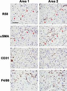 Identification Of R58 Positive Cells In Ccl4