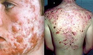 How To Get Rid Of Cystic Acne  Treatment And Home Remedies
