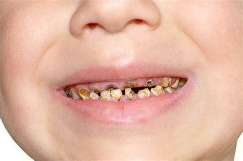 儿童牙齿发黑龋齿图片 (8)_有来医生