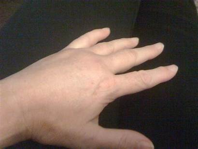 Hand Sprained January Different