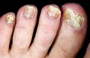 Проявления грибка на коже ног