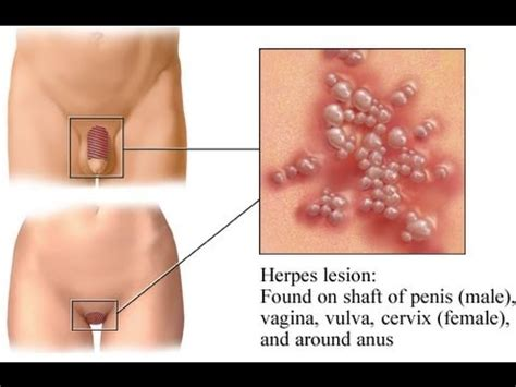 laser hair removal trigger herpes breakouts youtube
