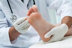 Чем лечить грибок на руке между пальцев
