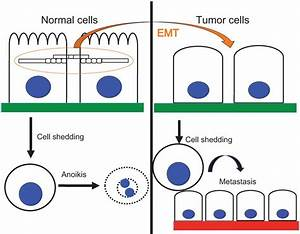 Mechanisms That Link The Oncogenic Epithelial U2013mesenchymal