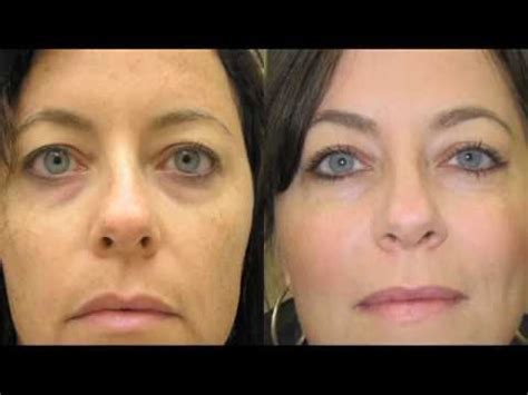 Look Younger Today! Broadband Light Therapy - Advanced