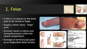 Hand & Foot infections