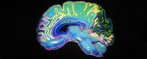 major mental illnesses share unexpected levels