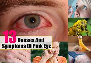 6 Natural Ways To Treat Pink Eye Health Care A To Z