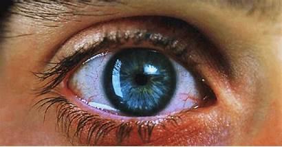 Turned Eye Face Nose Dream Pupils Something