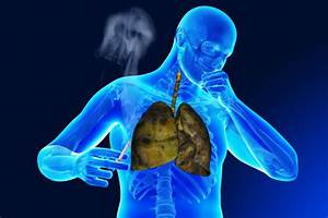 How Does Stigma Surrounding Copd Affect Research And Care
