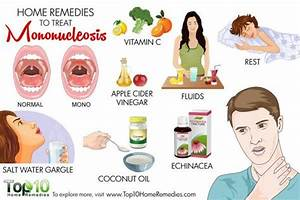 Home Remedies To Treat Mononucleosis Top 10 Home Remedies