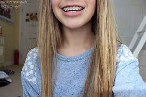 braces.♡ I'm getting braces in December or any time this ...