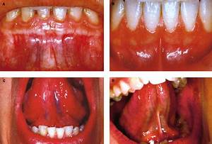 Absence of the inferior labial and lingual frenula in ...