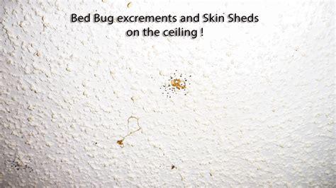 The Worst Case Of Bed Bug Infestation Quest Pest