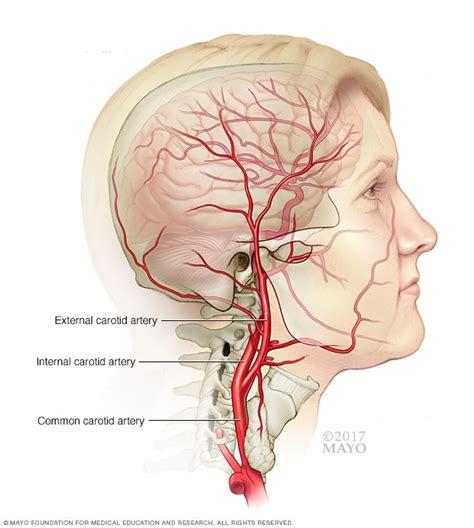 carotid angioplasty  stenting mayo clinic
