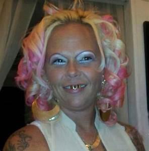 Worst Lips Bad Lips Bad Makeup Fashion Fails Ugly Botox ...