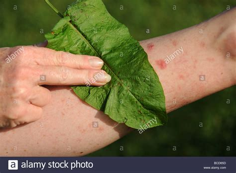 Treating A Nettle Sting With A Dock Leaf Stock Photo