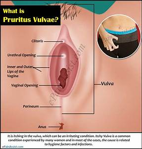 What Is Pruritus Vulvae  Know The Causes  U0026 Ways To Prevent