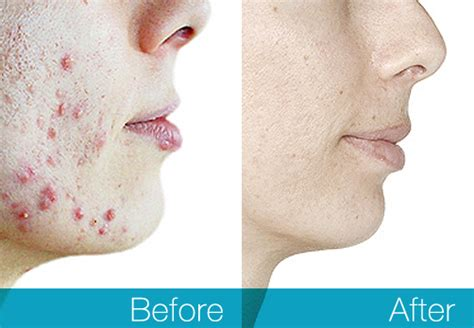 best treatment for pimples best acne treatments 2019 do these products really work