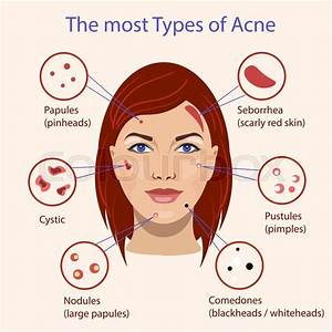 Different Type Of Acne  Vector Illustration With Skin