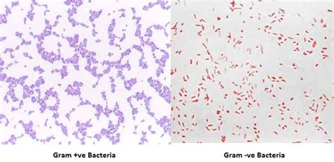 gram positive is what color gram staining principle procedure interpretation