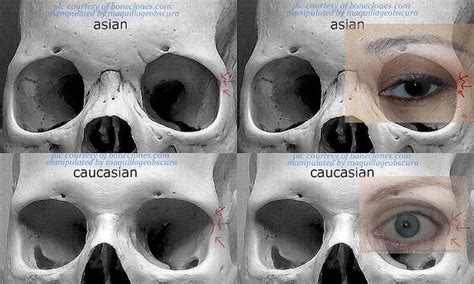 Asian And Caucasian Eye Structural Differences