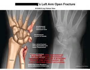 Left Distal Radius and Ulna Fracture