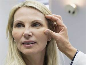 What Causes Swelling In The Face And Eyes