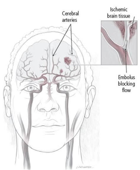 Could A Silent Stroke Erode Your Memory?  Harvard Health. Exchange Signs. High Contrast Signs. Regulations Signs Of Stroke. Conceptual Framework Signs. Osha Signs Of Stroke. Shiny Leg Signs. Panic Attack Signs. Do Not Feed The Animal Signs Of Stroke
