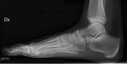 Foot Lateral Ray Normal Right Projection Does