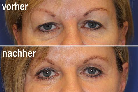 Augenlidstraffung, Lidkorrektur
