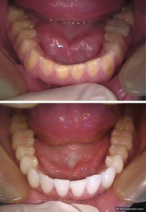 comparison  showing teeth  exhibit signs
