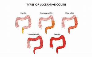 What Is Ulcerative Colitis  Uc