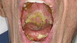 Nasty Throat Infection