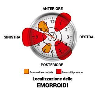 dolori emorroidi interne emorroidi interne ed esterne cura sintomi cause rimedi
