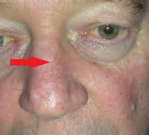 Early Skin Cancer On Nose