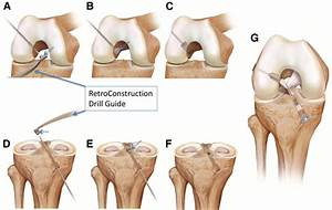 Anterior Cruciate Ligament Reconstruction With Bone