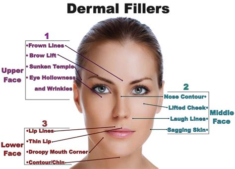 Non surgical forehead lift
