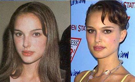 Natalie Portman Plastic Surgery Nose Job Before After