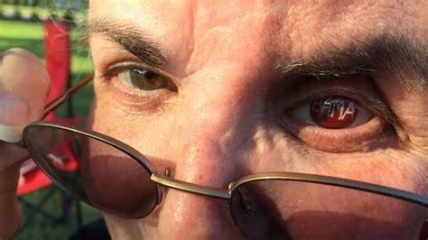 alabama super fan  bama artificial eye sbnationcom