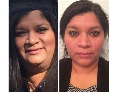 Hypothyroid In Photosbefore And After  Stop The Thyroid